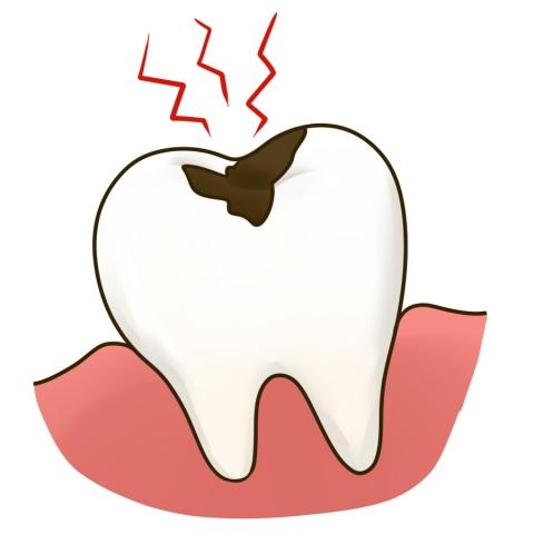 虫歯の痛そうなイラスト